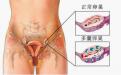 多囊卵巢怎么怀孕  专家说这样做能怀孕率增加