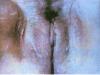 曝光女生殖器疱疹图片 生殖器疱疹5个症状危害女性身心