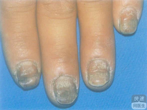 分享治疗灰指甲的三个中药药方