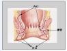 肛瘘的初期症状有哪些 认识肛瘘病发的3大症状