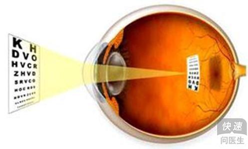 励志 屈光不正 眼睛/远视眼可以治疗吗?