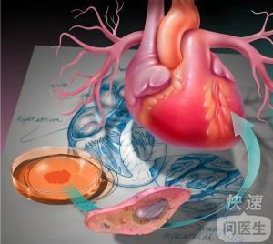 心梗早期应该做些什么检查