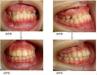 地包天牙齿矫正图片集锦 简单步骤让你拥有整齐美齿