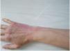 静脉炎的图片大揭晓  从图片认识静脉炎5大表现