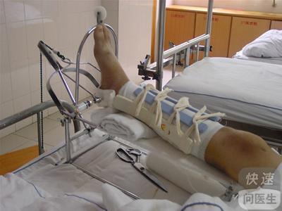 手肘摔伤如果骨折什么症状