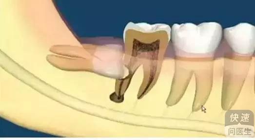 人为什么要长智齿 详细分析智齿的生长过程