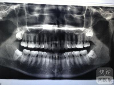 人有几颗智齿 专家说并非所有人都长智齿