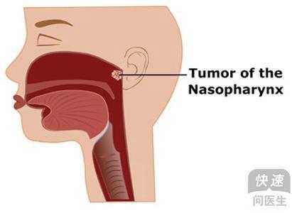 鼻咽癌伴淋巴结肿大要不要化疗