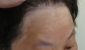 泰安治疗脸部白癜风需要多少钱