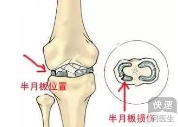 运动员半月板损伤的最好治疗方法 半月板损失的治疗