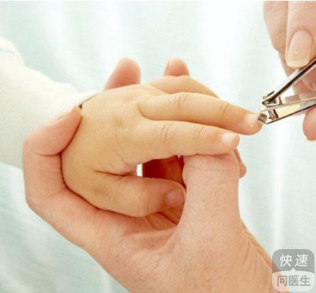 宝宝多大可以剪指甲?