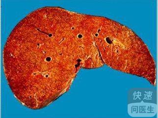 护肝片对治疗酒精肝有用吗