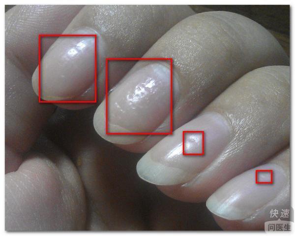 指甲有凹陷怎么回事 凹陷虽小可不能小觑它