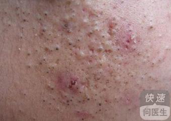 面部激素性皮炎图片展示 四方面做好皮肤病预防
