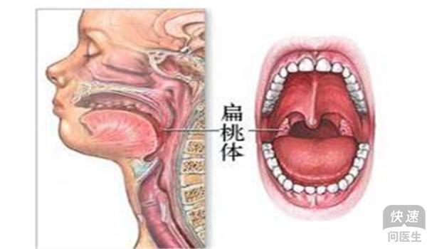 舌癌的早期症状有哪些 舌癌早期有3个信号