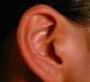 慢性外耳炎怎么根治 4个步骤助你根治慢性外耳炎