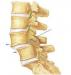 腰椎滑脱术后注意什么 揭秘腰椎滑脱5个注意事项