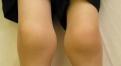 小腿肌肉萎缩怎么办 强调肌肉协调性训练