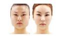 瘦臉磨骨手術多少錢 磨骨瘦臉手術的恢復時間