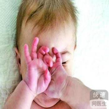 小儿衣原体症状图片