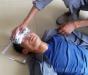 手术如何治疗癫痫 解密手术治疗癫痫的步骤