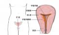 如何预防子宫内膜癌 子宫内膜癌预防五部曲曝光