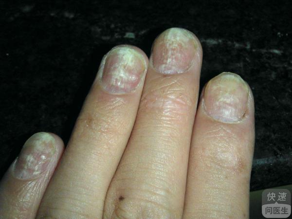 哪些色素疾病导致引发的灰指甲