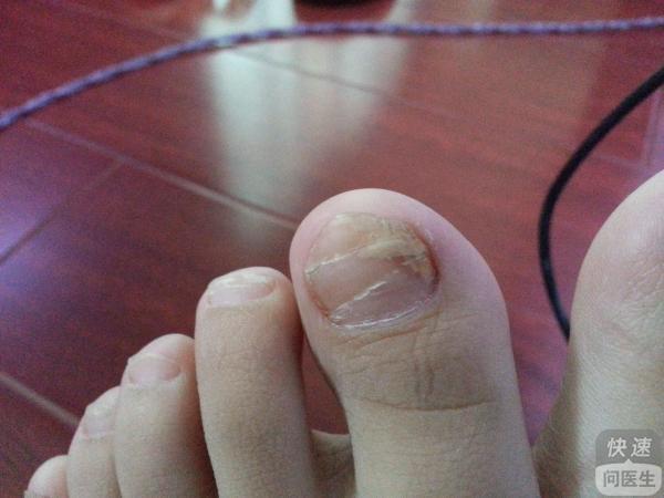 冰醋酸治疗灰指甲会痛吗 其他治疗灰指甲的药物
