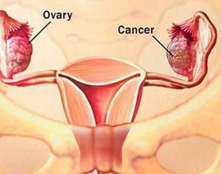 卵巢癌淋巴结转移怎么办