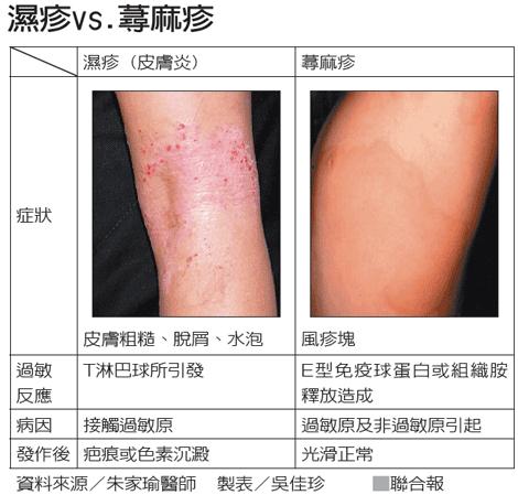 麻疹和湿疹的区别