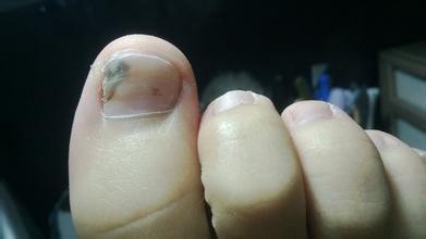 儿童灰指甲治疗偏方