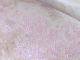 梅毒硬下疳早期症状