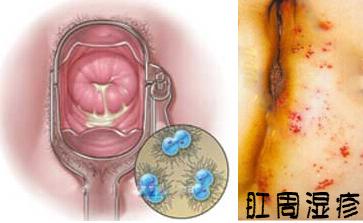 肛周湿疹图片大全_肛周湿疹怎么治疗