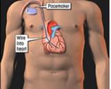 心脏起搏器植入术