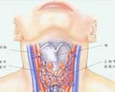 单纯性甲状腺肿