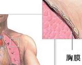 胸膜间皮瘤