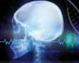 神经转移性肿瘤