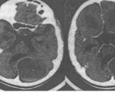 血管网状细胞瘤