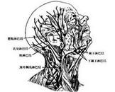 颈淋巴结结核