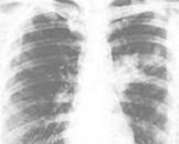 小儿肺炎支原体肺炎(其他名称:原发性非典型肺炎,冷凝集阳性肺炎)
