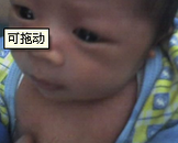 小儿甲状腺功能亢进