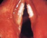 小儿咽-结合膜热