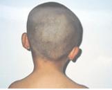 先天性肌性斜颈