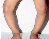 先天性膝关节畸形