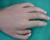 先天性并指多指畸形