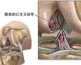 膝关节韧带损伤