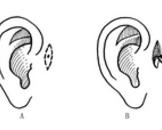 先天性耳前瘘管