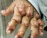 Alagille综合征(其他名称:先天性肝内胆管发育不良征,动脉-肝脏发育不良综合征,Watson-Alagille综合征)
