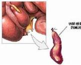 艾滋病人的急性阑尾炎