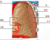肺放线菌病